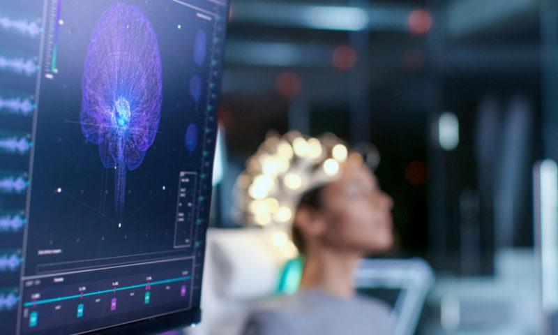 Η Τεχνητή Νοημοσύνη εξετάζει τον εγκέφαλό σου